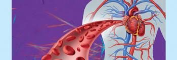 Cardiometabolic Risk and Cardiomyopathies